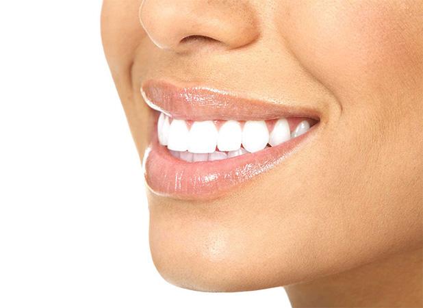 odontologia_0000_carillas