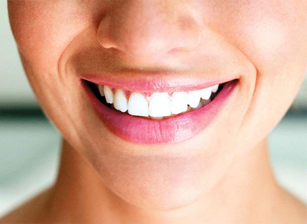 odontologia_0002_sonrisa