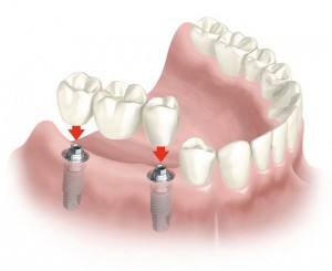 implantes dentales baratos en Madrid