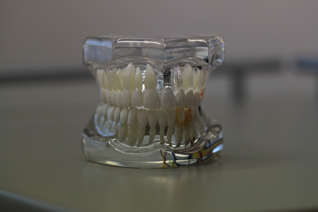 implantes dentales económicos en Madrid