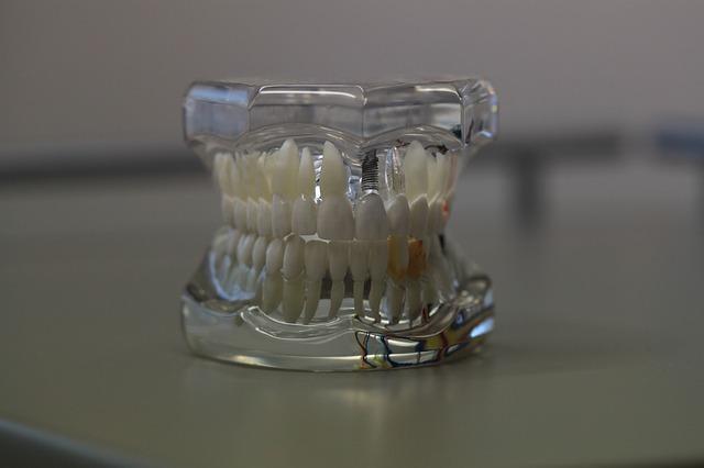 implantes dentales económicos en Madrid