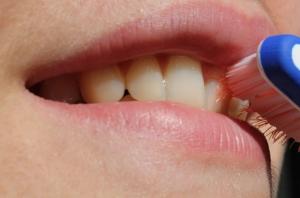 Dentistas-Madrid-centro