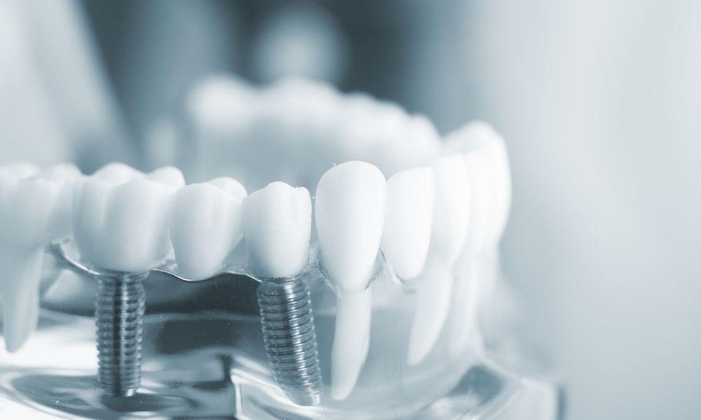 implantes dientes